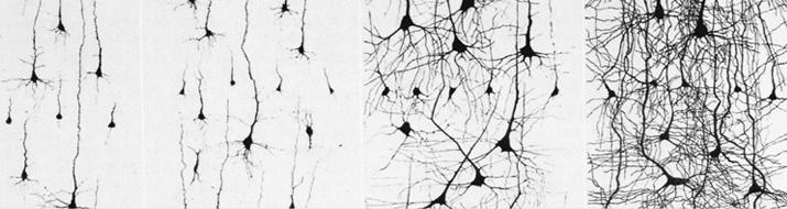 neuroplasticity-banner-77f6a688022811b36d894b9288bd49f3