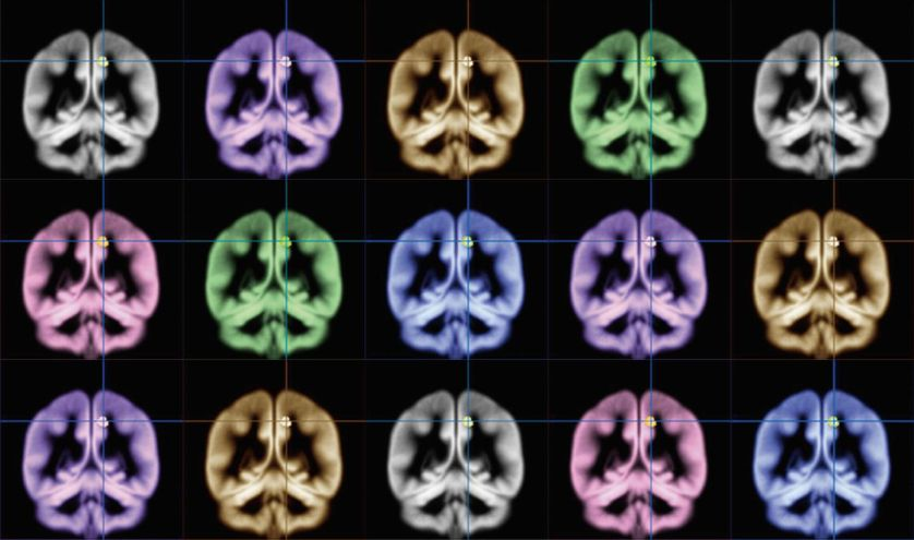 Scientists used MRI brain scans to identify happiness in a brain region known as the precuneus. (Photo: Kyoto University)